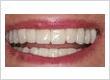 crown_teeth