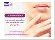 Lip Augmentation in delhi