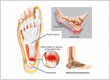 NYC Foot Injections (cortisone, steroid)
