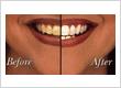 Dr Bez Shokouhi Dentist Castle Hill