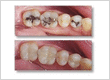 dentist rockville md