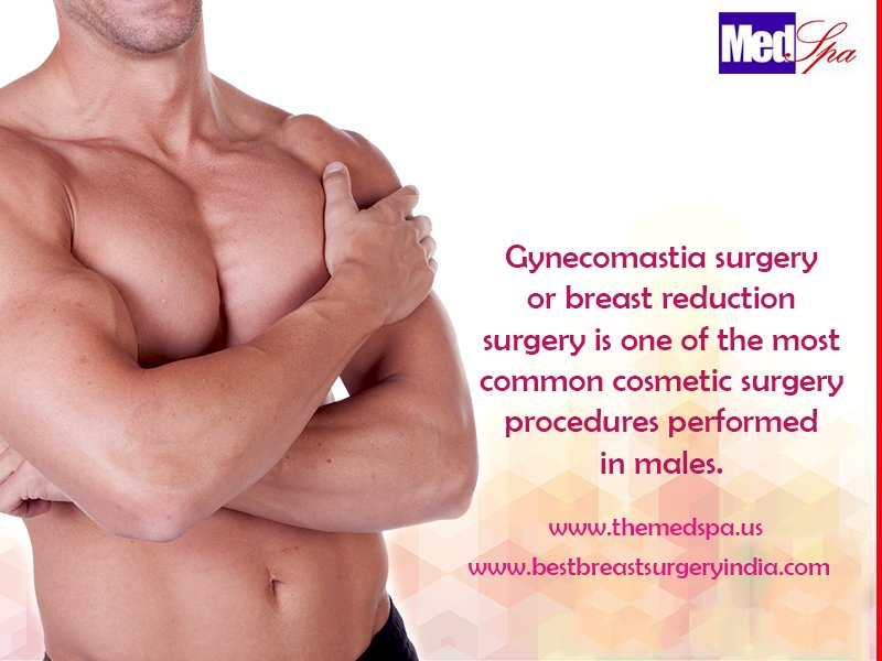 Gynecomastia surgery in Delhi – Causes for excessive large breasts in men
