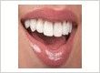 Dental-veneers-Birmingham