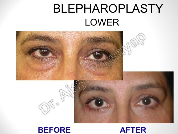 Eyelid lifts can help correct sagging upper eyelids or puffy lower lids