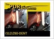 large Dent in a fender Removed by PDR