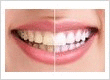 cosmetic dentistry burnaby