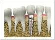 Bayonne Dental Implants