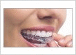 The process of installing Invisalign