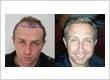 Rahal Hair Transplant