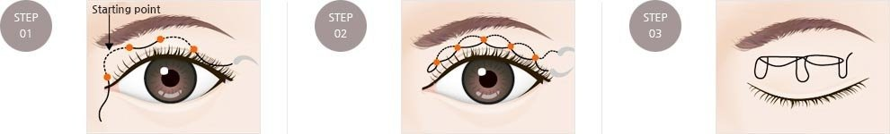Leading Plastic Surgery Team Specializes in Double Eyelid Surgery