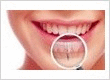 Dental Implants Treatment in Dominion Road, Mt Roskill, Mt Eden, Mt Albert, Auckland