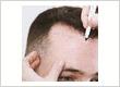 hairreplacementglasgow