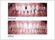 Ottawa Invisalign Dentist