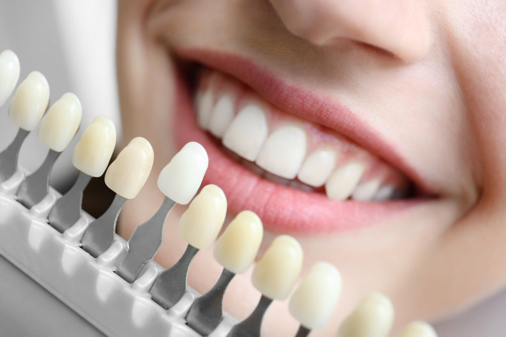 6 Dental Problems That Can Be Resolved With Cosmetic Dentistry