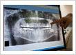 Digital X-rays Jacksonville FL