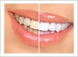 Whitening Teeth Vancouver BC