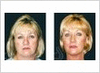 Dr Longin Zurek Cosmetic Surgeon