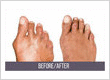 Bunion Surgery in NYC