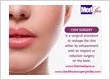 Chin Surgery in Delhi