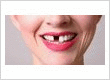 Porcelain Veneers Dental Center